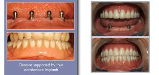 how to clean dentures after thrush
